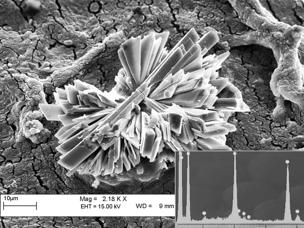 Сибирские ученые выяснили, как минералы воздействуют на организм человека